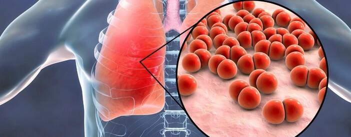 La Polmonite: sintomi, cause, diagnosi e trattamento